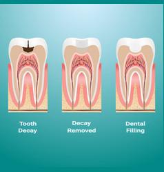 Treatment of caries dental filling dental caries vector