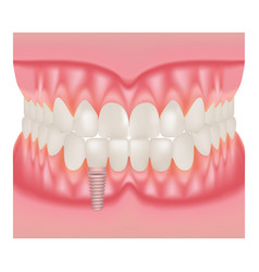 Human jaw model with teeth and implant vector