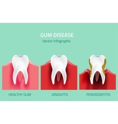 Gum disease stages teeth infographic vector