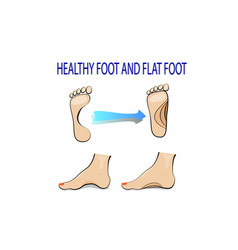 Flat feet and healthy foot vector