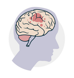 Problems with the brain vector