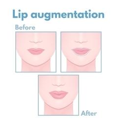Plastic surgery lip vector