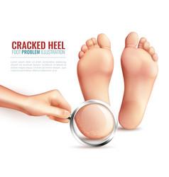 Cracked heels vector