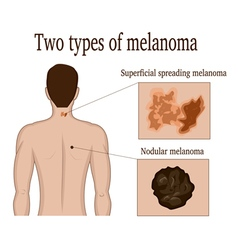 Two types of melanoma vector