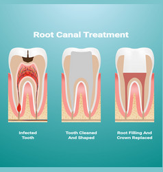 Pulpitis root canal therapy infected pulp is vector