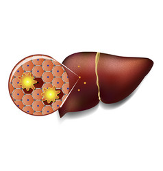Liver cells attacked by toxins vector