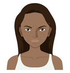 Woman with facial skin problem vector
