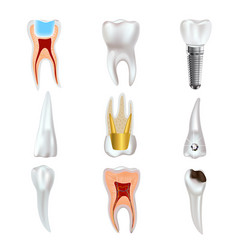 Dental implant and real tooth anatomy icon set vector