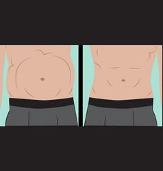 Abdominal bloating vector