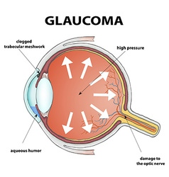 Glaucoma stock vector