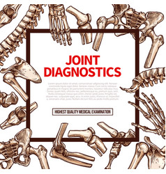 Poster for joint medical diagnostics vector