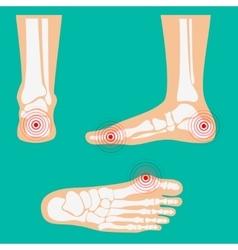 Human leg pain zones vector