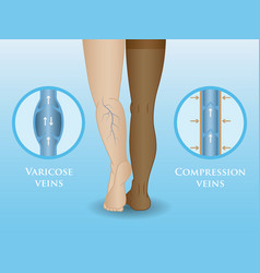 medical compression hosiery vector image vector image