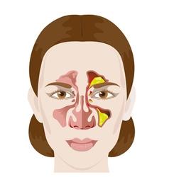 sinusitis vector image