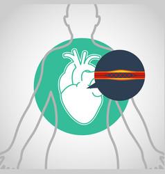 Cardiac catheterization logo icon design vector