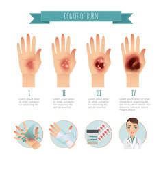Degree of skin burns burns treatment vector