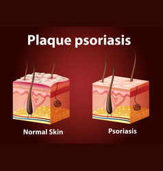 Diagram showing plaque psoriasis vector