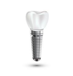 Dental implant realistic anatomy vector