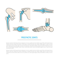 Implantation joint skeleton vector