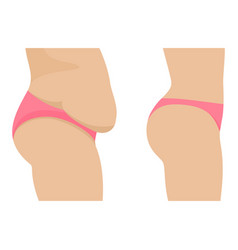 Female abdomen before after losing weight vector