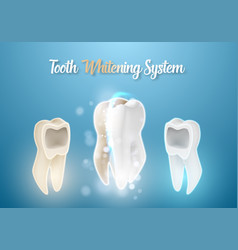 3d realistic teeth cleaning process healthcare vector image vector image