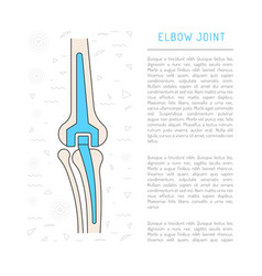 Elbow joint prosthesis vector