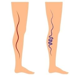 Leg veins vector