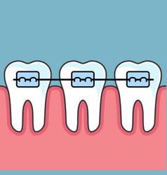 Teeth with dental braces - dental arrange vector