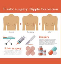 nipple correction plastic surgery vector image vector image