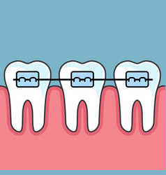 Teeth with dental braces - dental arrange vector