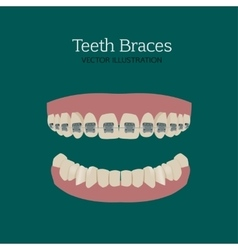 Teeth braces ve vector