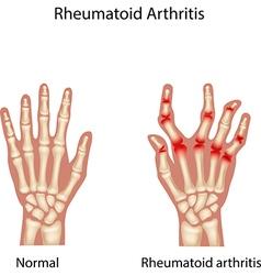 Rheumatoid Arthitis vector image vector image
