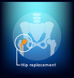 Hip replacement logo icon design vector