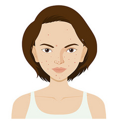 Woman face with pimples vector