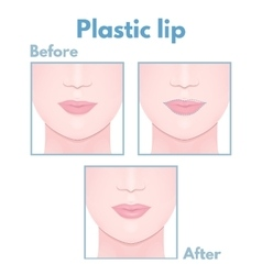 Plastic surgery lip vector