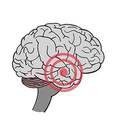 Brain in headache place of pain in brain vector