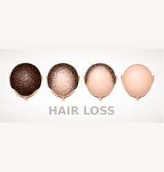 Hair loss set of four stages of alopecia vector