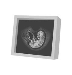 Ultrasound fetus cartoon icon vector
