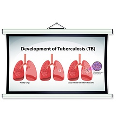 Chart showing development of tuberculosis vector