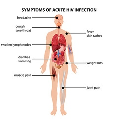 Diagram showing symptoms of acute hiv infection vector