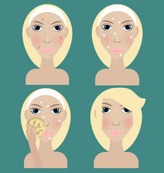 Acne treatment young blonde woman vector