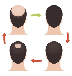 Male hair loss stages set vector