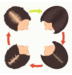 Female pattern hair loss stages vector