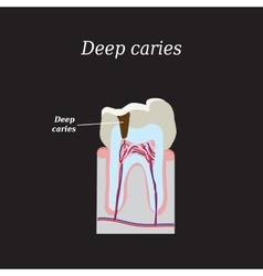 Deep tooth decay on a black vector