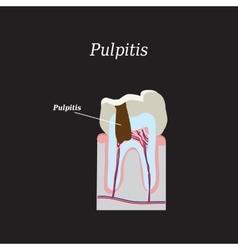 Dental pulp on a black vector