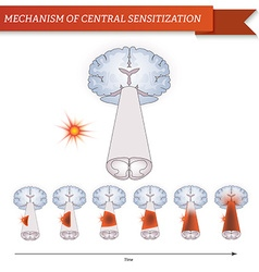Infographic mechanism of central sensitization vector