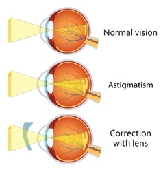 Astigmatism corrected by a cylindrical lens vector image vector image