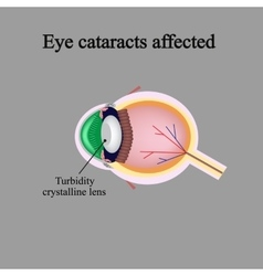 The structure of the eye Eye cataracts affected vector image