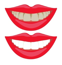 Before and after teeth whitening comparison vector