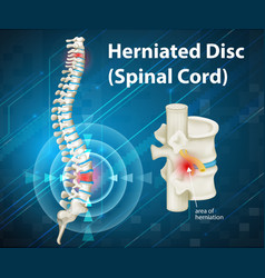 Diagram showing herniated disc vector